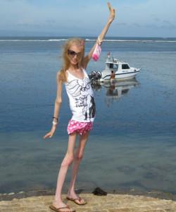 A_triste_e_falsa_beleza_da_anorexia.jpg (18)