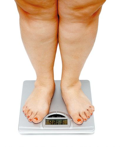 1010_obesidade_f_001